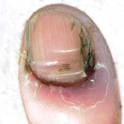 candidal nail infection