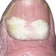 proximal subungal onychomycosis